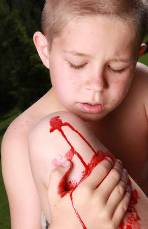 Ten years old boy holding his bloody injured knee