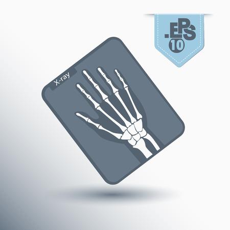 conduction: X-ray photograph Illustration