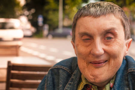 Close-up portraiture of disabled man sitting at an outdoor cafe.