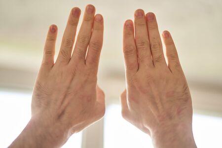 Imperfección de la piel. Alergia de piel. Enfermedad de urticaria. Manchas rojas en la piel. De cerca.
