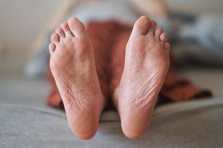 Eczema on the feet of a young girl. Rashes on the skin of a girl Stock Photo