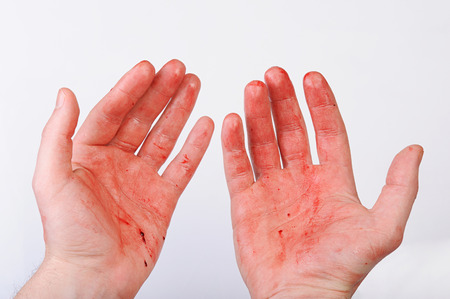 cut and blood: hand full of blood on white background