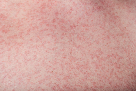 macro of skin with rash from dengue disease Zdjęcie Seryjne