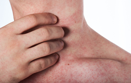 man scratching his neck with rash isolated on white