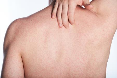 sarpullido: erupción cutánea de alergia en la espalda del hombre aislado en blanco