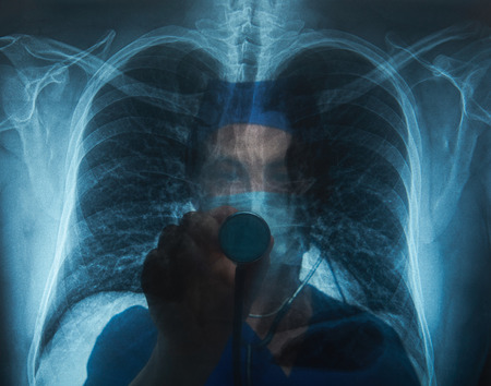radiologist: x-ray image of lungs with radiologist on back