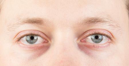 Man's tired gray eyes close up Stock fotó