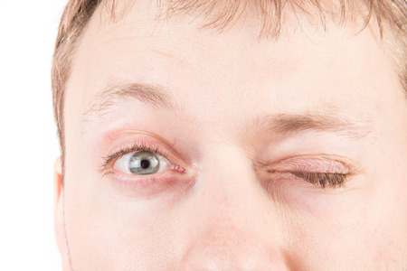 tired eyes: Mans tired gray eyes with clean skin