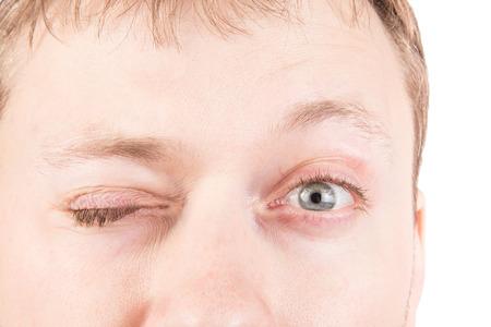 blinking: Mans blinking gray eyes close up