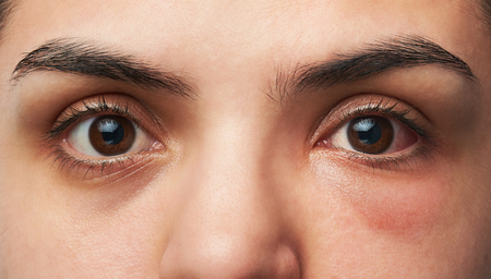 close up eyes: close up of two woman eyes with allergy reaction on one red  eye