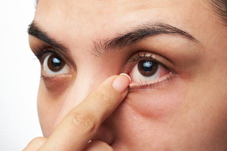 foreign bodies: close up of woman show her red sick eye with finger