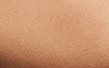 Goose bumps on human skin macro. Texture of skin with goosebumps