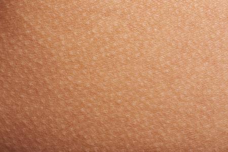 人間の皮膚のクローズ アップに鳥肌が立つ。鳥肌が立つと皮膚の空間構成