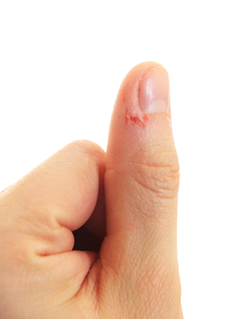 Rode wond op de duim in de buurt van de nagel. Duim met een slechte manicure close-up. Duim met hangnail geïsoleerd op een witte achtergrond.