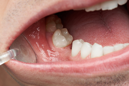 Ontbrekende tand in het close-up van de mensenmond. Tandarts die ontbrekende tanden controleert Stockfoto - 80874041
