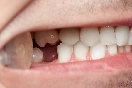 Zęby z luką brakujących zębów z bliska. Doktorski mężczyzna sprawdza zęby