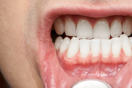 Man mouth with healthy teeth close-up. Doctor dentist checking man mouth Stock Photo