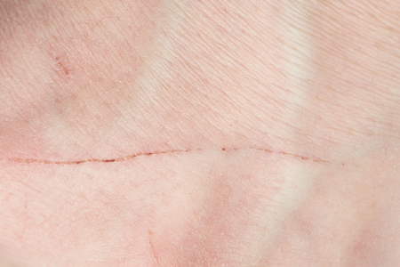 Scratch on human skin close up. Long cut on human skin 스톡 콘텐츠