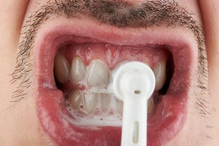 Polishing white teeth macro close up view