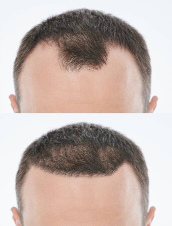 Bold problem treatment. Man before and after hair recovery procedure