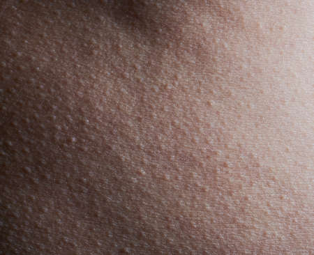 Pattern of human skin with bumps macro close up view
