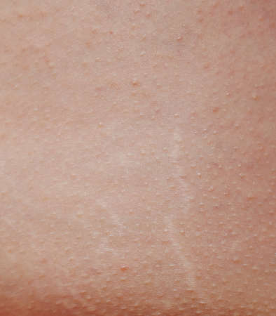 Lines from stretches on human skin. Texture of real woman skin