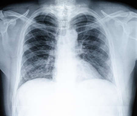 Chest X-ray of a patient covid 19