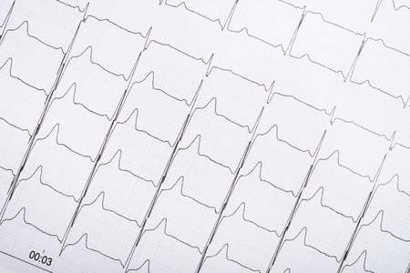 Closeup photo of ECG cardiogram pulse graph on a paper. medical pulse line heart. Standard-Bild