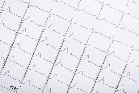 Foto del primo piano del grafico di impulso del cardiogramma di ECG su una carta. cuore medico della linea di impulso.