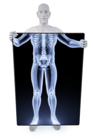 man under the X-rays through the screen. photo