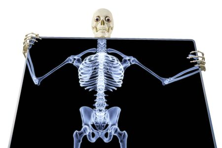 skeleton under the X-rays through the screen. photo
