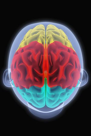 Scanning of a human brain by X-rays. part of the brain highlighted in different colors. Stock Photo - 6681553