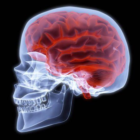 human skull under X-rays, 3d render photo