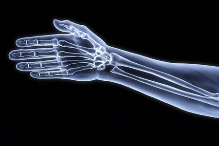hand on hip: human hand under the X-rays. Stock Photo