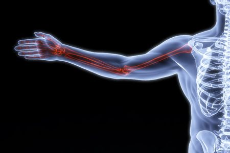 highlighted: human hand under the X-rays. bones are highlighted in red.