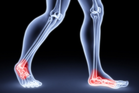 ilium: male feet under the X-rays. knee joints are highlighted in red.