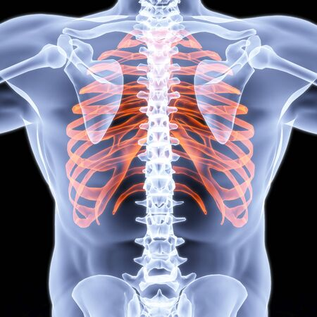 human bones: Mens chest X-rays under. edges highlighted in red. Stock Photo