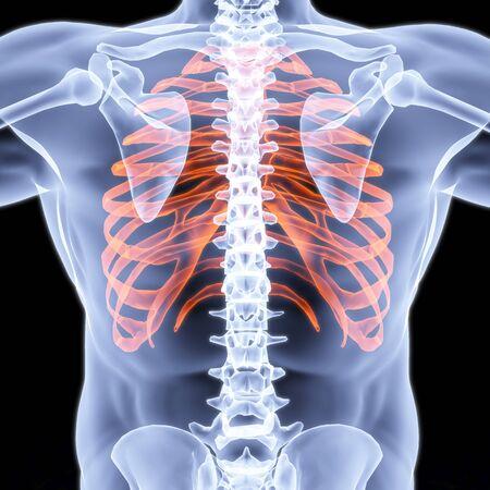 partes del cuerpo humano: Rayos x de pecho masculino bajo. Bordes resaltados en rojo.