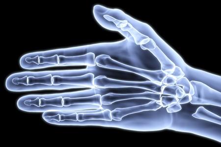 fractura: mano humana bajo los rayos X. imagen 3D.