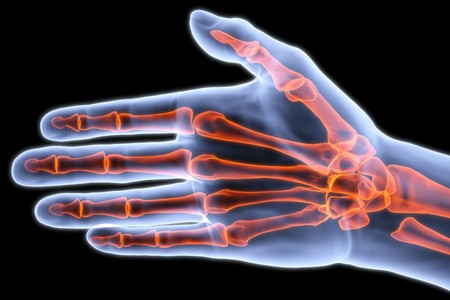 broken wrist: human palm under X-rays. bones are highlighted in red.