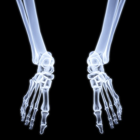 human legs under X-rays. 3d image. photo