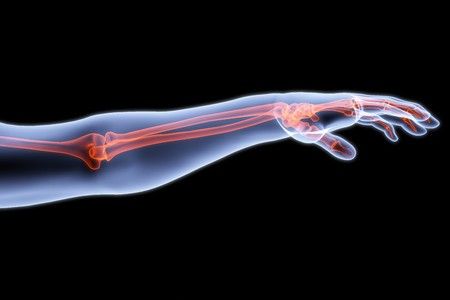 radiogram: human hand under X-rays. bones are highlighted in red. Stock Photo