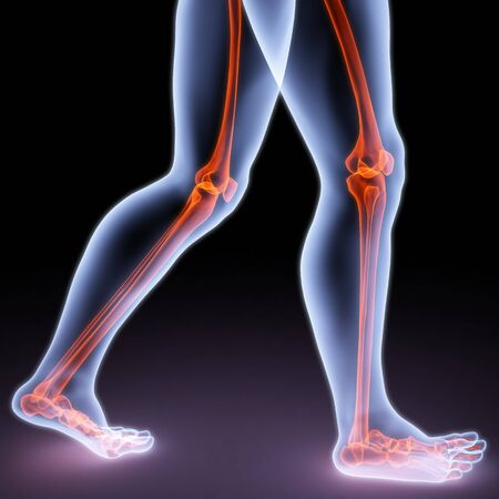 arm pain: feet walking person under X-rays. bones are highlighted in red.