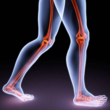 pies caminar persona bajo los rayos X. huesos están resaltados en rojo.