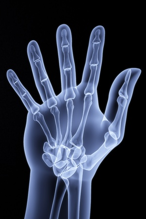 arms body: the human hand shows the number of fingers under the X-rays Stock Photo