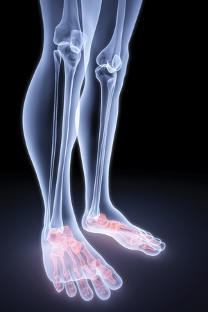 foot pain: male feet under the X-rays. bones are highlighted in red.