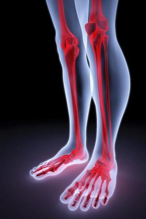 pies masculinos bajo los rayos X. huesos están resaltados en rojo.