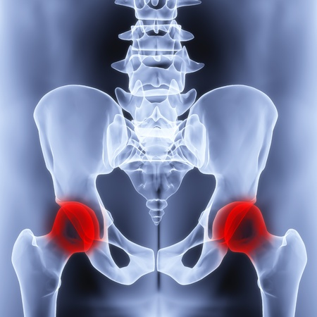allocated: male pelvis under the X-rays. joints are highlighted in red. Stock Photo