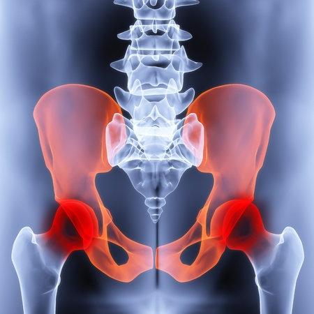 male pelvis under the X-rays. joints are highlighted in red. photo