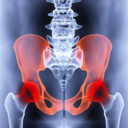 cuerpo hombre: pelvis masculino bajo los rayos X. las articulaciones est�n resaltadas en rojo.